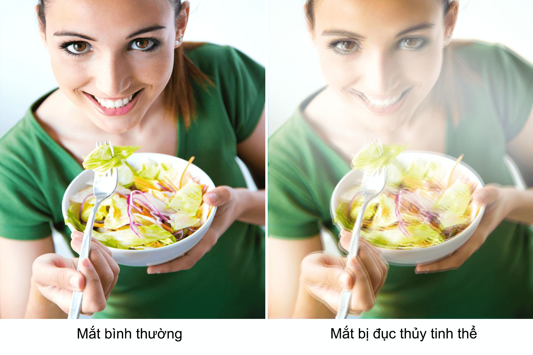 trieu-chung-duc-thuy-tinh-the