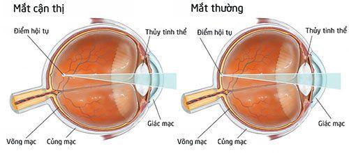 Kết quả hình ảnh cho Tật cận thị