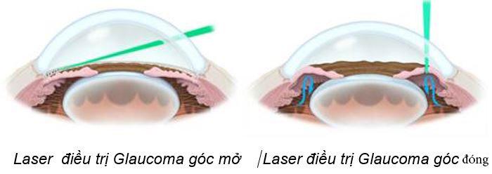 dieu-tri-glaucoma-2