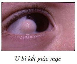 u-bi-ket-giac-mac