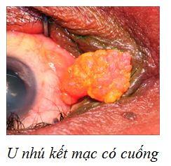 u-nhu-ket-mac-co-cuong