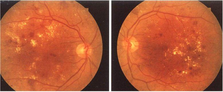 Vi phình mạch, xuất tiết cứng và xuất huyết trong bệnh VMĐTĐ nền nặng