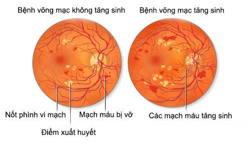 vong-mac-dai-thao-duong-3