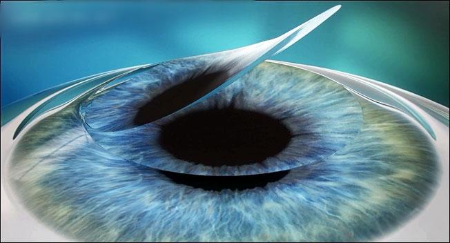 phẫu thuật lasik