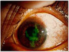 nguyên nhân gây đỏ mắt