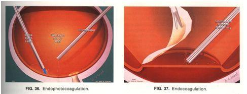 Laser nội nhãn và Điện đông nội nhãn