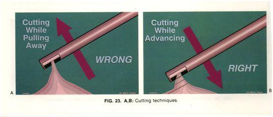 cắt dịch kính