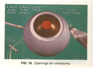 phẫu thuật cắt dịch kính