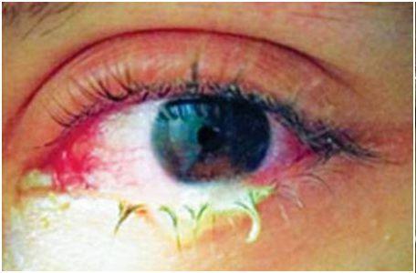 viêm loét giác mạc nhiễm khuẩn