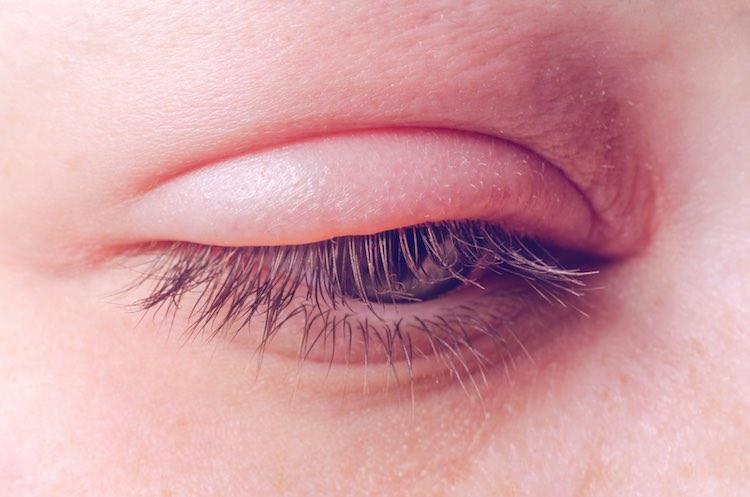 sưng mi mắt