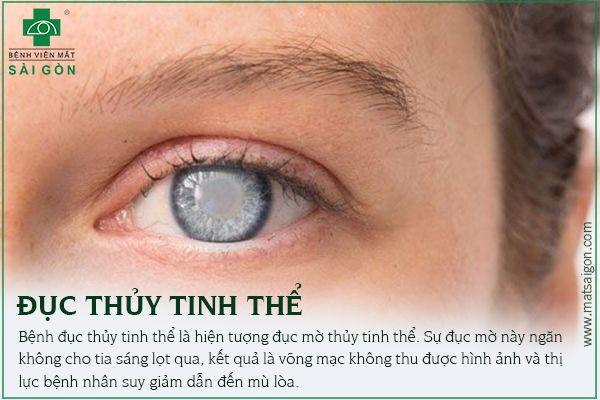 Những bệnh về mắt có nguy cơ mù lòa nếu không được chữa trị kịp thời-2