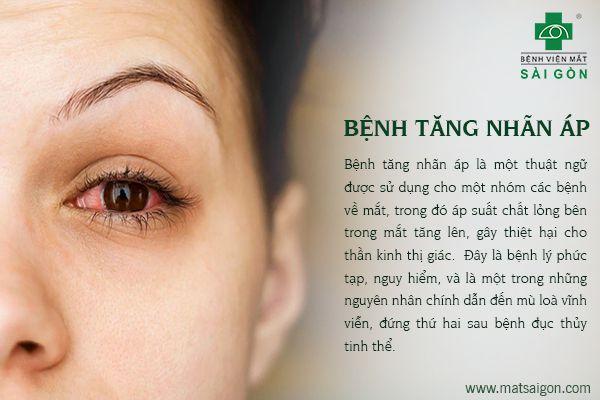 Những bệnh về mắt có nguy cơ mù lòa nếu không được chữa trị kịp thời-3