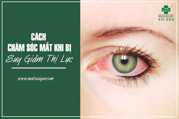 Cách chăm sóc mắt khi bị suy giảm thị lực-1