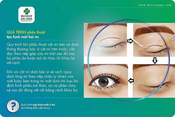 tạo hình mắt 2 mí