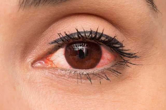 nhiễm trùng mắt