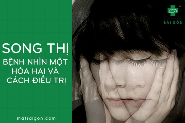 song thị