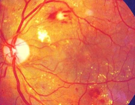 bệnh lý đáy mắt
