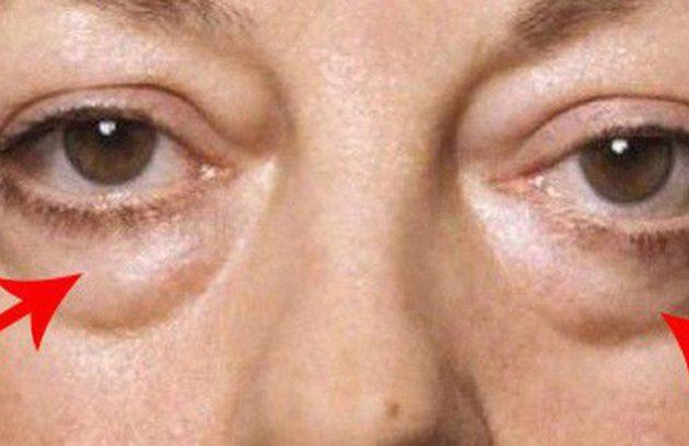 Bọng mắt, nguyên nhân và cách điều trị