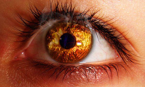 Bỏng mắt: nguyên nhân, hình thái, đặc điểm chung của bỏng hóa chất