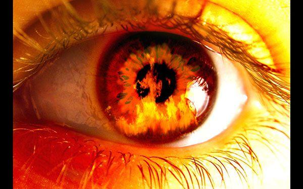 Bỏng mắt do tai nạn điều trị và phòng ngừa