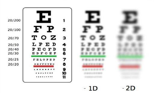 Cách tính độ cận thị và những phần mềm đo thị lực tin cậy
