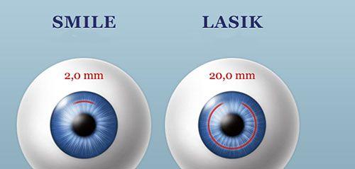 Cận thị nguyên nhân và cách điều trị