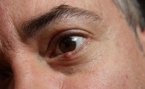 Lưu ý cách chăm sóc mắt khi bị chắp và lẹo
