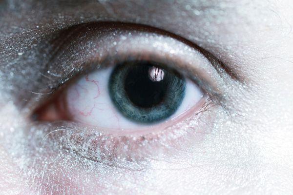đau hốc mắt