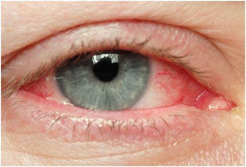 Đau mắt đỏ lây qua đường nào và cách phòng tránh
