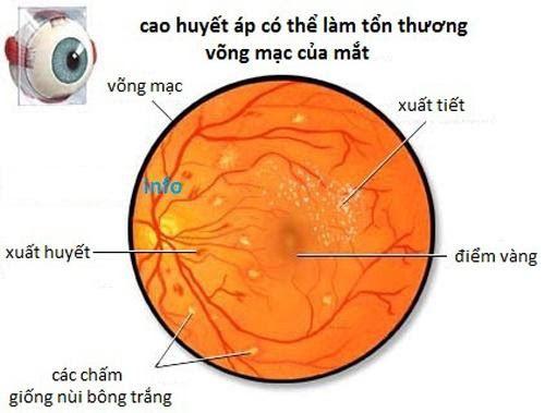 Bệnh tăng huyết áp ảnh hưởng đến mắt như thế nào?