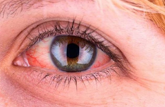 Mắt bị nóng rát là dấu hiệu cho biết bạn đang gặp vấn đề gì về sức khỏe