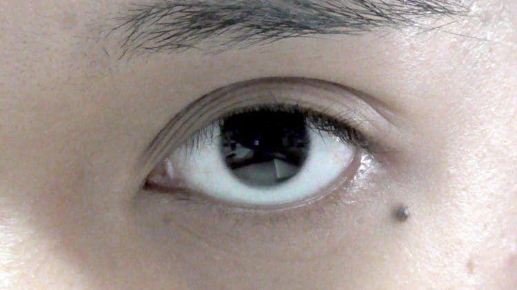 Nốt ruồi ở mi mắt: ý nghĩa tướng số hay điềm báo bệnh tật