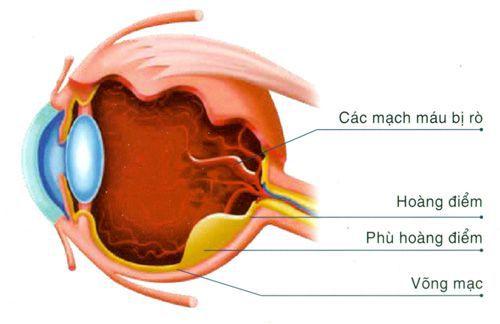 Biến chứng phù hoàng điểm ở bệnh nhân đái tháo đường - Bệnh Viện Mắt Sài Gòn