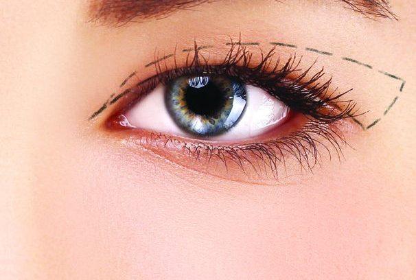 Quá trình cắt mắt 2 mí và những điều cần lưu ý