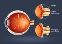 teo dây thần kinh thị giác