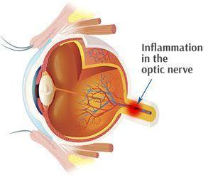 viêm dây thần kinh thị giác