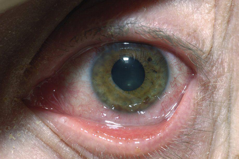 Viêm giác mạc do virus herpes triệu chứng và cách điều trị