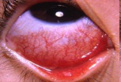 Những điều cần biết về Viêm kết mạc do virut