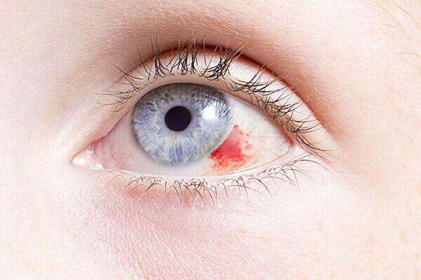 xuất huyết tiền phòng sau chấn thương mắt